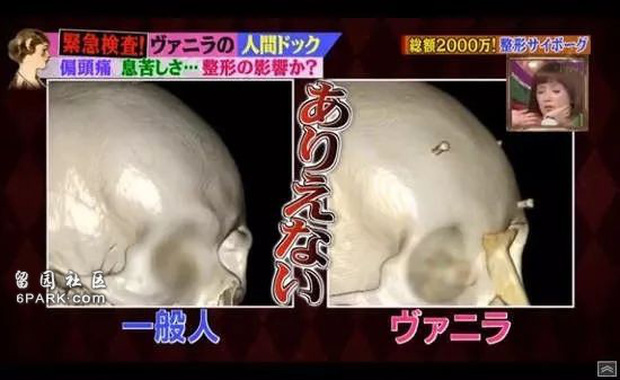 Thảm hoạ thẩm mỹ Nhật Bản: Bị bố ruột ruồng bỏ vì quá xấu, hàng trăm ca dao kéo bất chấp sinh mạng và tâm sự buồn phía sau - Ảnh 14.