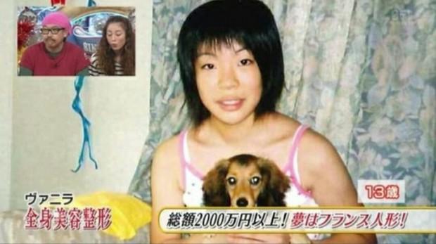 Thảm hoạ thẩm mỹ Nhật Bản: Bị bố ruột ruồng bỏ vì quá xấu, hàng trăm ca dao kéo bất chấp sinh mạng và tâm sự buồn phía sau - Ảnh 1.