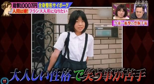 Thảm hoạ thẩm mỹ Nhật Bản: Bị bố ruột ruồng bỏ vì quá xấu, hàng trăm ca dao kéo bất chấp sinh mạng và tâm sự buồn phía sau - Ảnh 3.
