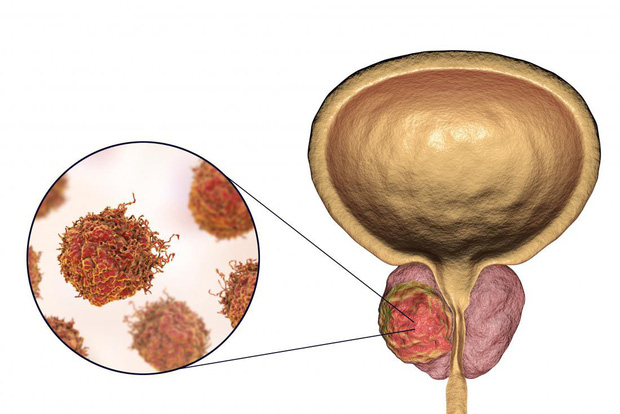 Nghiên cứu từ Nhật Bản: căn bệnh đáng sợ này ở nam giới sẽ giảm nguy cơ đến 17% nếu ăn thực phẩm này 3 lần mỗi tuần - Ảnh 1.