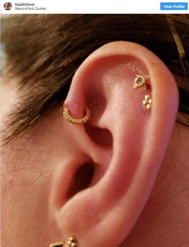 Nhiễm trùng tai trông sẽ như thế nào? 9 hình ảnh này sẽ giúp bạn hiểu chính xác tình trạng này - Ảnh 6.