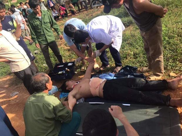 Nghệ An: Nam thanh niên tự rạch bụng lòi cả nội tạng vì nghĩ bên trong có bom - Ảnh 1.