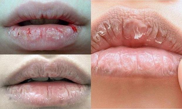 4 biểu hiện lạ xuất hiện trên đôi môi ngầm cho thấy chức năng gan của bạn gặp vấn đề - Ảnh 3.