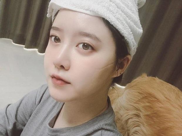 Goo Hye Sun gây xôn xao khi  đăng tải ảnh selfie với dòng chú thích kì lạ: Tôi vừa đấu dao với người ngoài hành tinh - Ảnh 2.
