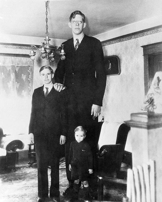 Cuộc đời kì lạ và bi thảm của người đàn ông cao nhất thế giới: Nổi tiếng khắp nơi nhưng ra đi ở tuổi 22 vì một vết nhiễm trùng nhỏ - Ảnh 7.