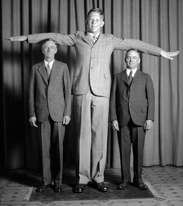 Cuộc đời kì lạ và bi thảm của người đàn ông cao nhất thế giới: Nổi tiếng khắp nơi nhưng ra đi ở tuổi 22 vì một vết nhiễm trùng nhỏ - Ảnh 10.