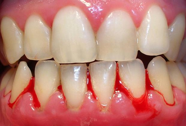 Nếu răng của bạn xuất hiện từ 1 đến 6 triệu chứng sau đây thì bạn cần đi kiểm tra răng càng sớm càng tốt - Ảnh 3.