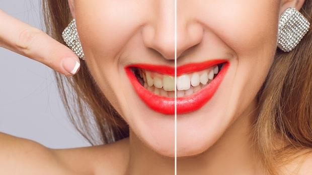 Mẹo nhỏ giúp bạn giải quyết nỗi lo răng ố vàng, nhanh chóng lấy lại nụ cười trắng sáng tự tin - Ảnh 1.