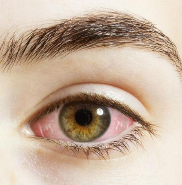 Gan đang kêu cứu thông qua 4 biểu hiện lạ trên đôi mắt mà nhiều người chẳng ngờ tới - Ảnh 4.