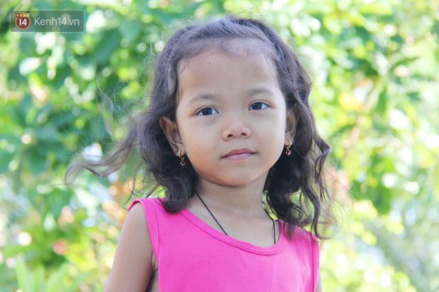 Lời khẩn cầu của bé gái 7 tuổi bị bướu máu ác tính, có nguy cơ cắt bỏ chân phải nếu không đủ tiền phẫu thuật - Ảnh 3.