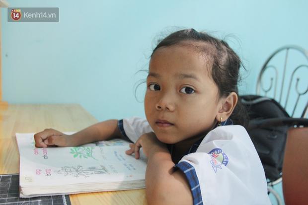 Lời khẩn cầu của bé gái 7 tuổi bị bướu máu ác tính, có nguy cơ cắt bỏ chân phải nếu không đủ tiền phẫu thuật - Ảnh 9.