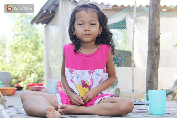 Lời khẩn cầu của bé gái 7 tuổi bị bướu máu ác tính, có nguy cơ cắt bỏ chân phải nếu không đủ tiền phẫu thuật - Ảnh 1.