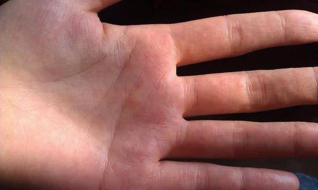 3 biểu hiện ở ngón tay cho thấy bạn đang bị xơ gan - Ảnh 2.