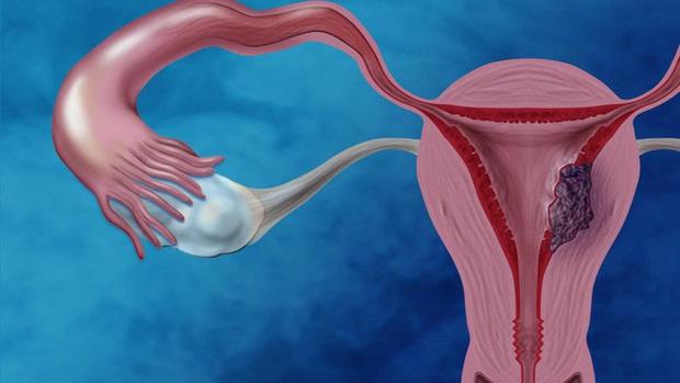 Nữ giới cứ thức khuya nhiều rất dễ mắc phải 5 căn bệnh, 3 trong số đó đều là bệnh phụ khoa - Ảnh 1.