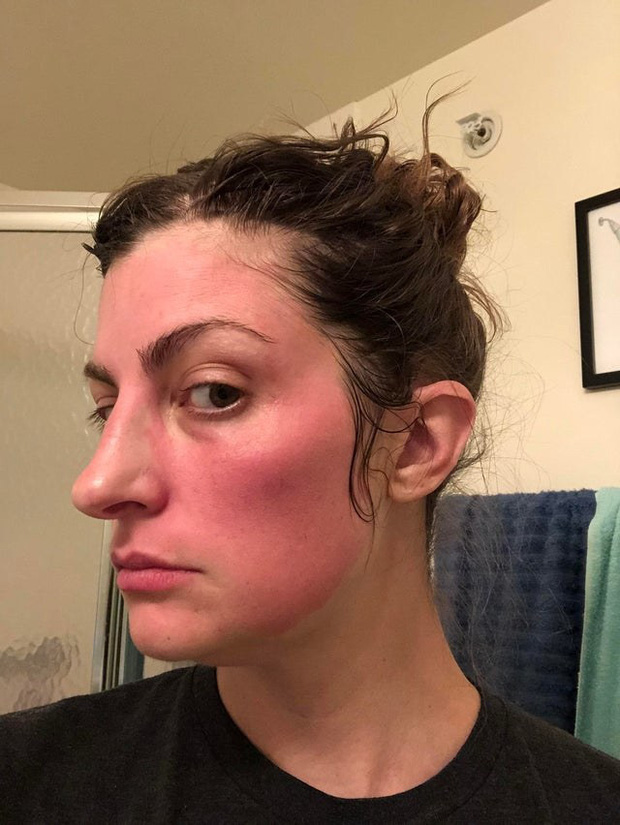 """Phần lớn chị em đều mắc sai lầm khi mua đồ skincare khiến da """"toang"""" như chơi, và đây chính là bằng chứng hùng hồn - Ảnh 1."""