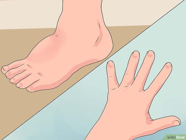 5 dấu hiệu bất thường xuất hiện trên cơ thể ngầm cảnh báo bạn đang nạp vào quá nhiều muối - Ảnh 3.