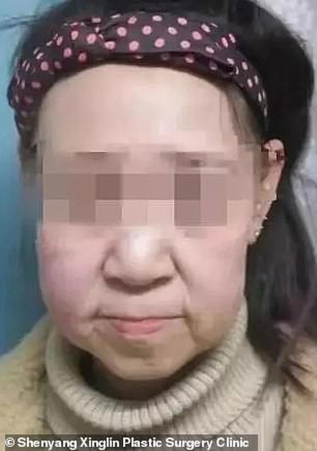 Cô gái 15 tuổi nhưng sở hữu gương mặt như cụ bà nay đã có diện mạo mới khiến ai cũng trầm trồ  - Ảnh 1.