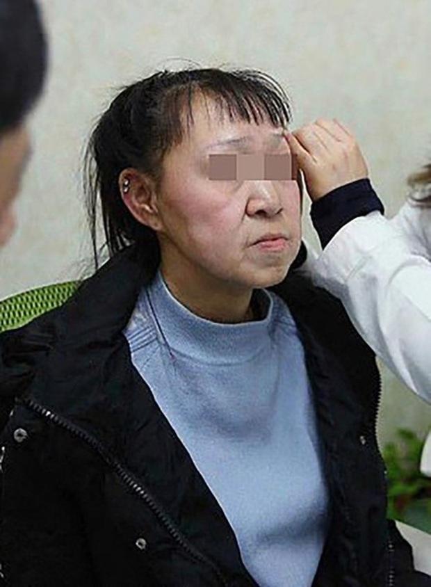 Cô gái 15 tuổi nhưng sở hữu gương mặt như cụ bà nay đã có diện mạo mới khiến ai cũng trầm trồ  - Ảnh 2.