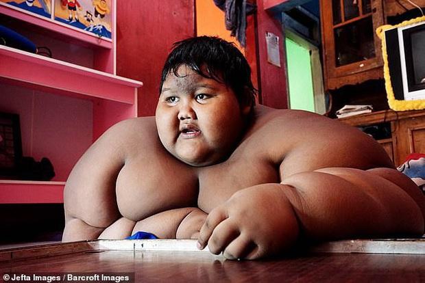 Cậu bé nặng nhất thế giới với gần 200kg sau 4 năm phẫu thuật thu nhỏ dạ dày giờ lột xác không ai nhận ra - Ảnh 2.