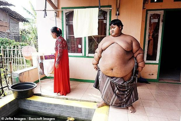 Cậu bé nặng nhất thế giới với gần 200kg sau 4 năm phẫu thuật thu nhỏ dạ dày giờ lột xác không ai nhận ra - Ảnh 5.