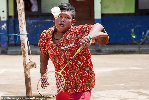Cậu bé nặng nhất thế giới với gần 200kg sau 4 năm phẫu thuật thu nhỏ dạ dày giờ lột xác không ai nhận ra - Ảnh 7.