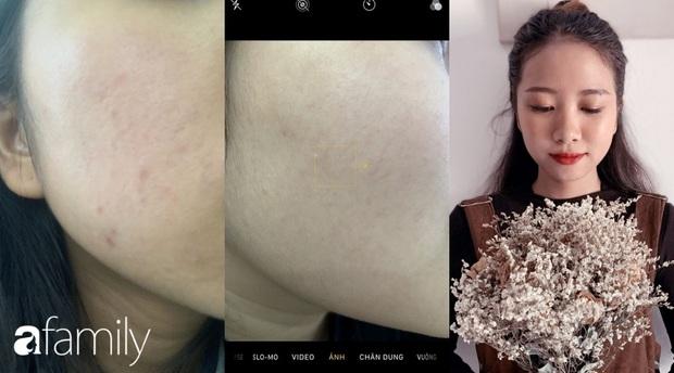 Không nhận 1 đồng quảng cáo, cô nàng này review cực có tâm 4 loại serum giúp phục hồi da sau mụn - Ảnh 7.
