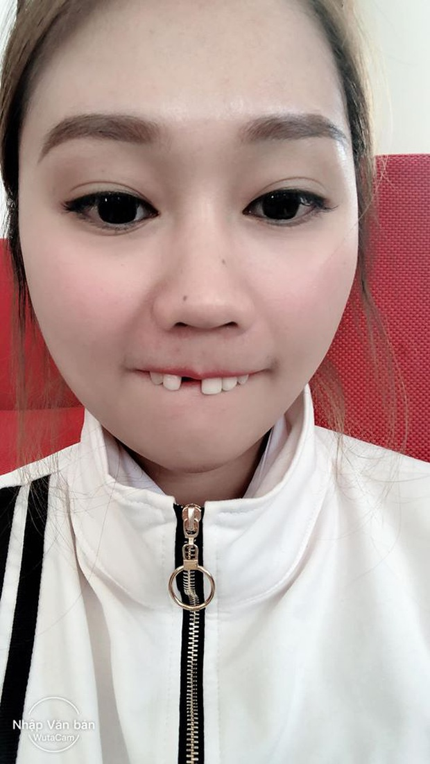 Cắn hướng dương ngày Tết, cô gái trẻ bị... rụng cả răng cửa tốn thêm bạc triệu để làm mới - Ảnh 4.