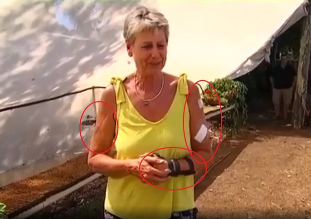 Con kangaroo hồn nhiên vào nhà dân ăn vụng rồi còn đấm người đến mức phải nhập viện vì gãy cổ tay - Ảnh 2.