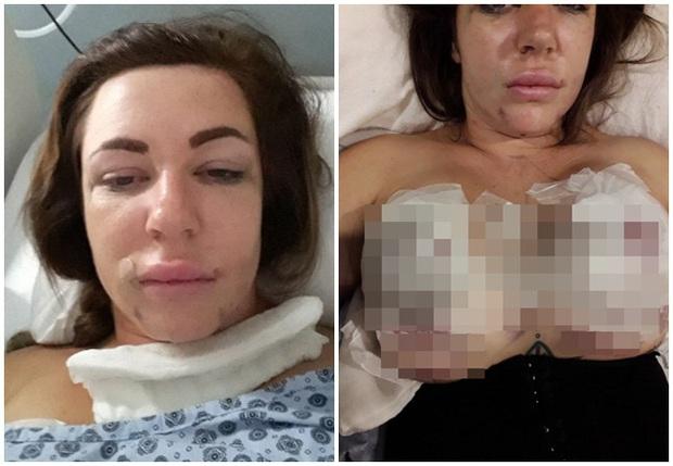 Ham nâng ngực giá rẻ, người phụ nữ trả cái giá quá đắt sau 7 tiếng đồng hồ nằm trên bàn phẫu thuật - Ảnh 2.