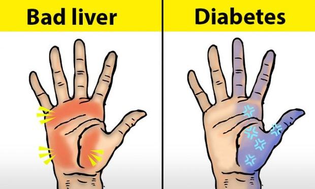 Người có chức năng gan ổn định sẽ không có 4 điểm lạ trên đôi tay, cùng xem bạn có điểm nào hay không - Ảnh 1.