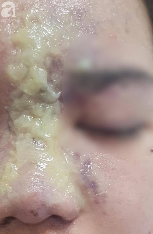Nhẹ dạ đi tiêm filler nâng mũi tại spa trôi nổi, thiếu nữ 15 tuổi bị mù vĩnh viễn mắt trái ngày cận Tết - Ảnh 1.