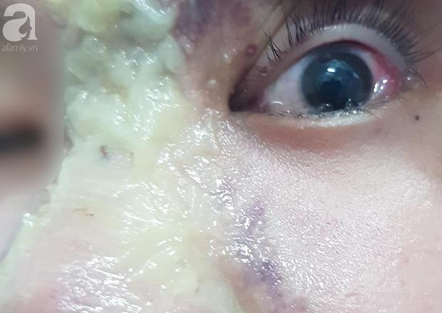 Nhẹ dạ đi tiêm filler nâng mũi tại spa trôi nổi, thiếu nữ 15 tuổi bị mù vĩnh viễn mắt trái ngày cận Tết - Ảnh 2.
