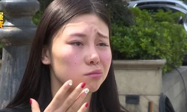 Tôi chỉ muốn chết thôi: Cô gái trẻ đau khổ khi miệng méo xệch, đơ nửa mặt chỉ vì hình thức làm đẹp nhiều chị em đang sử dụng - Ảnh 1.