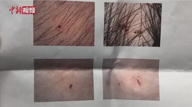 Vụ trẻ mẫu giáo có vết kim đâm kỳ lạ: Cảnh sát bắt được 3 cô giáo tàn độc, hiệu trưởng trường mẫu giáo bị cách chức - Ảnh 2.