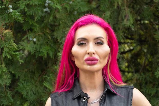 Cô người mẫu thực hiện vô số lần chỉnh sửa, tiêm filler trong suốt 4 năm để có đôi má lớn nhất thế giới bây giờ ra sao? - Ảnh 1.