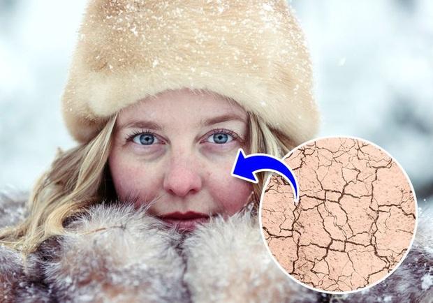 Đừng coi thường sưng tấy do nắng nóng hay da khô nứt nẻ vì giá lạnh, thời tiết có thể gây ra những tác hại đáng sợ sau với cơ thể bạn đấy - Ảnh 3.