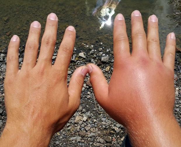 Đừng coi thường sưng tấy do nắng nóng hay da khô nứt nẻ vì giá lạnh, thời tiết có thể gây ra những tác hại đáng sợ sau với cơ thể bạn đấy - Ảnh 1.