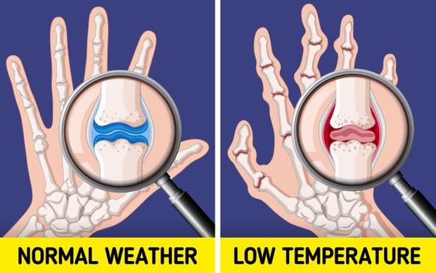 Đừng coi thường sưng tấy do nắng nóng hay da khô nứt nẻ vì giá lạnh, thời tiết có thể gây ra những tác hại đáng sợ sau với cơ thể bạn đấy - Ảnh 5.