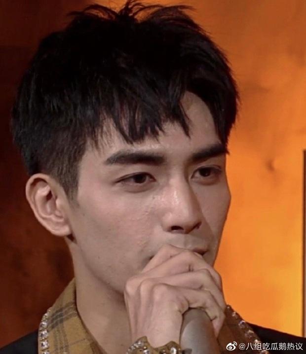 Sáng nhất Kim Ưng đêm nay là làn da sần sùi mụn đến gai người của Tống Uy Long: Mỹ nam hot bất đắc dĩ vì bị bóc nhan sắc thật - Ảnh 5.