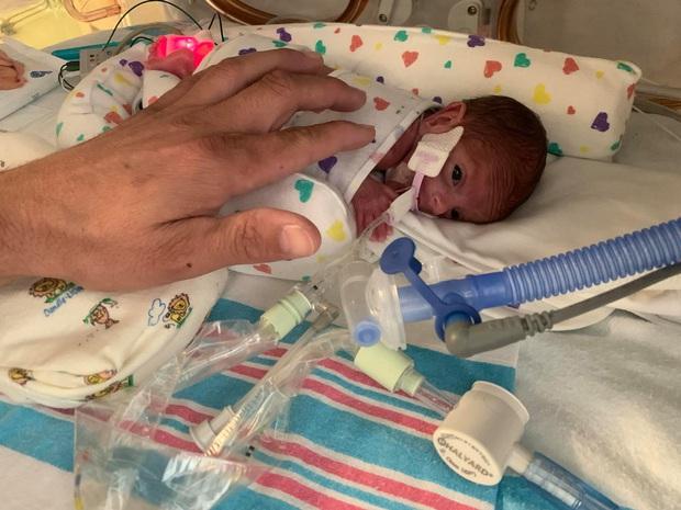 Bé sinh non chỉ nặng 4,5 lạng, nhỏ đến mức lọt thỏm bàn tay cha sống sót trở về nhà sau 133 ngày nằm viện khiến ai cũng xúc động - Ảnh 2.