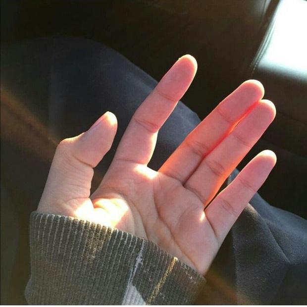 6 thứ đổi màu trên cơ thể là dấu hiệu cảnh báo gan bị tổn thương nhưng nhiều người chẳng hay biết - Ảnh 4.