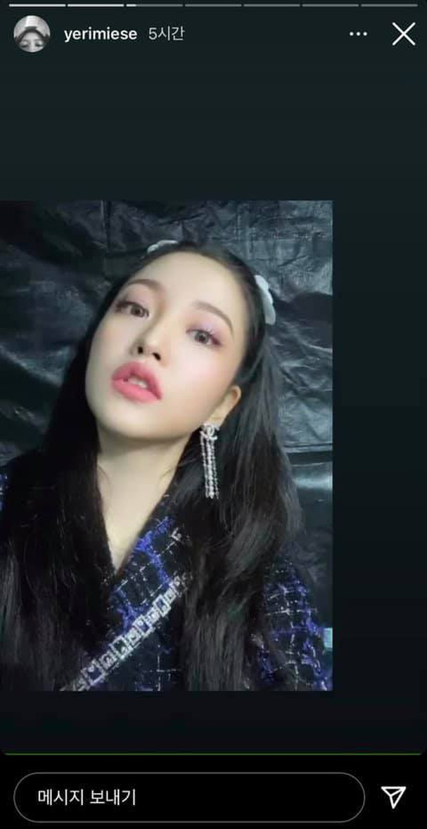 Yeri (Red Velvet) môi tều khác lạ, tạo dáng sexy, dân tình tố ngay bắt chước Jennie (BLACKPINK) - Ảnh 2.
