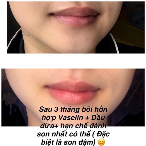 Rẻ vô địch với tip trị thâm môi do đánh son, chỉ cần Vaseline và dầu dừa khiến môi hồng hào, không makeup mà vẫn xinh tươi - Ảnh 1.