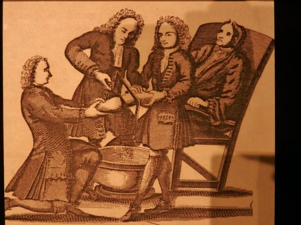 Bác sĩ phẫu thuật tai tiếng nhất thế kỷ 19: Mổ 1 nhưng chết 3, cắt chân nhanh quá xẻo nhầm cả tinh hoàn bệnh nhân - Ảnh 3.