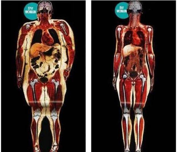 Phụ nữ có nội tạng nhiễm bệnh và tuổi thọ ngắn thường có 2 điểm hình tròn trên cơ thể: Dù ở độ tuổi nào bạn cũng nên kiểm tra ngay - Ảnh 2.