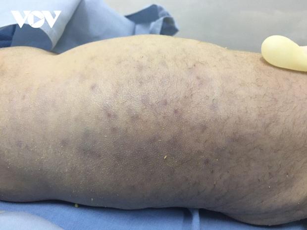 Một trẻ sơ sinh tại Quảng Ninh tử vong do nhiễm virus CMV - Ảnh 1.