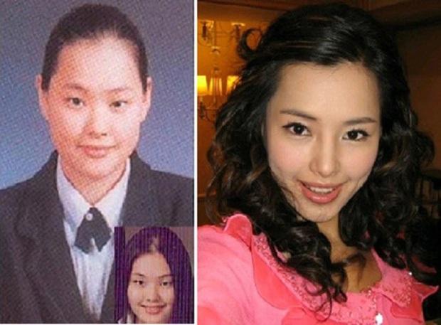 """15 năm Hoa hậu Hàn Quốc """"xứng danh"""" thị phi bậc nhất châu Á: Ai đăng quang cũng gây tranh cãi, ngập tràn drama """"dao kéo"""" - Ảnh 19."""