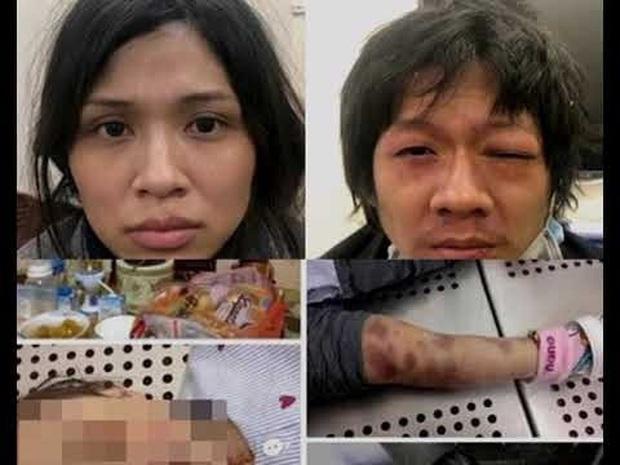 Bản tính ác độc và bệnh hoạn của cặp vợ chồng bạo hành con gái 3 tuổi đến chết - Ảnh 1.