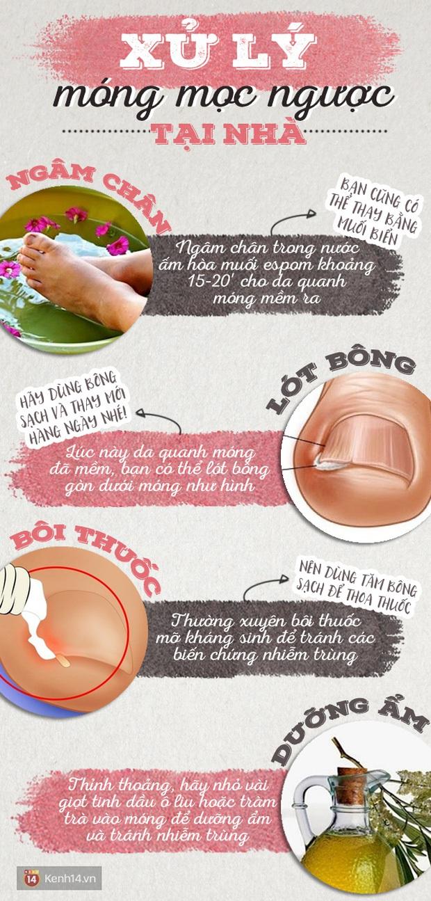 Bị đau ngón chân suốt 6 năm trời, người phụ nữ 39 tuổi đi khám mới phát hiện móng đã ăn sâu vào thịt - Ảnh 4.