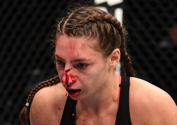 Nữ võ sĩ gặp chấn thương kinh hoàng sau cú đòn của đối thủ, fan tiếc nuối cho nhan sắc xinh đẹp của cô nàng - Ảnh 2.